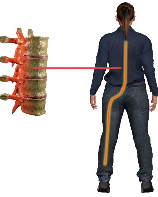 Physiotherapy for Sciatic Nerve Pain or Sciatica in Singapore