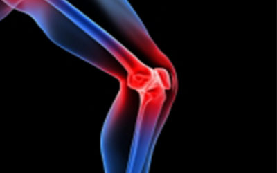 Patellar Tendinopathy